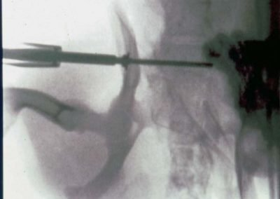Minimally invasive surgery image #3